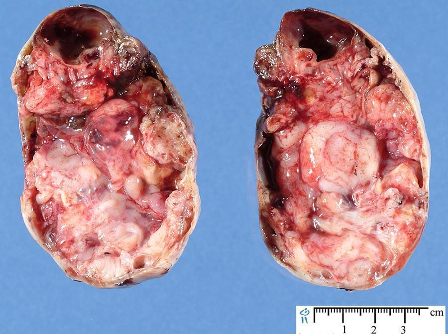 Тератома яичника симптомы
