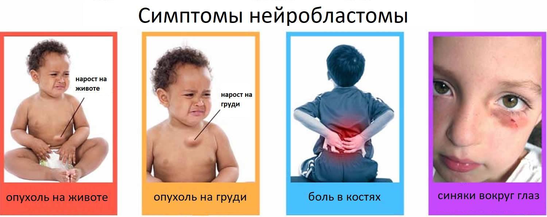 Нейробластома у взрослых симптомы