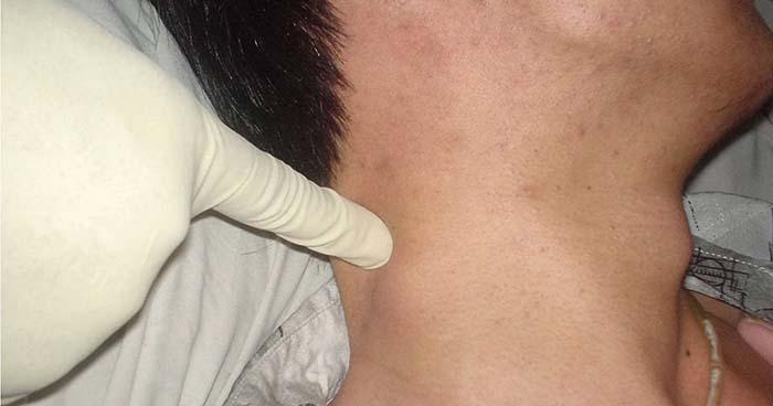 Лимфома: симптомы у взрослых, рак лимфатической системы, признаки болезни и проявление, сколько живут, лимфома Ходжкина