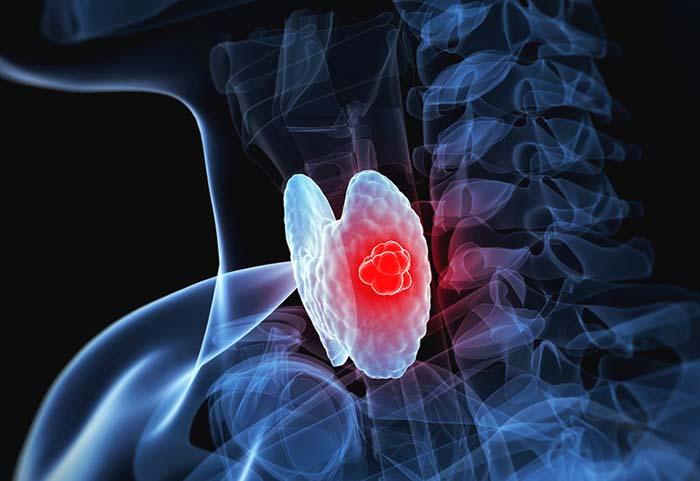 Медуллярный рак щитовидной железы: симптомы и прогноз лечеия