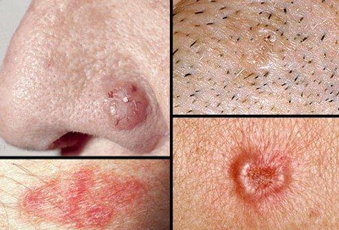 Базалиома кожи носа: виды, причины возникновения, симптомы, диагностика, лечение облучение, народные средства и пр. и прогноз выздоровления + фото