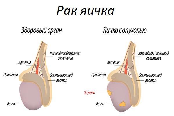 опухоль