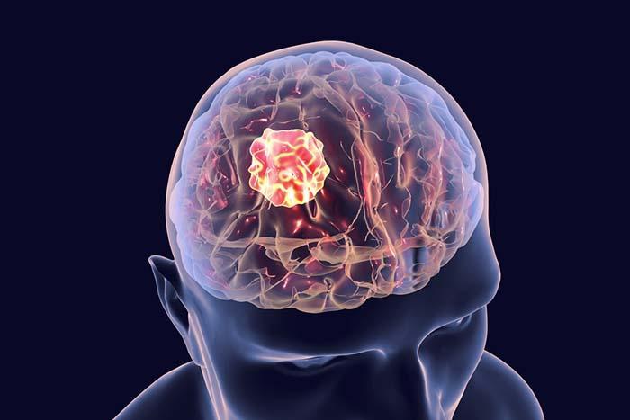 Анапластическая эпендимома спинного мозга