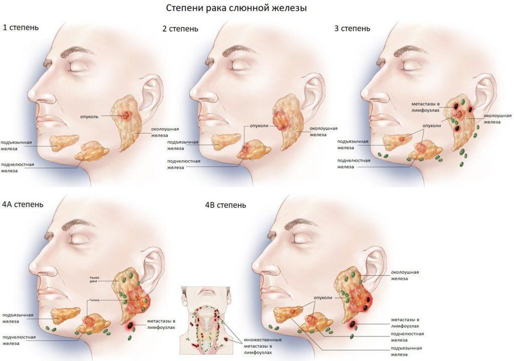 степени рака слюнной железы