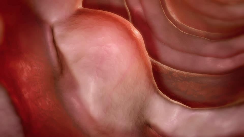 Рак двенадцатиперстной кишки: первые симптомы и лечение