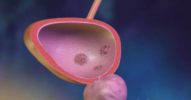 Опухоль мочевого пузыря у мужчин и женщин: симптомы, лечение, диагностика