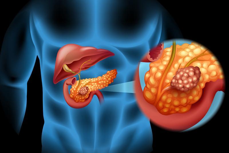 Обзор операций на поджелудочной железе
