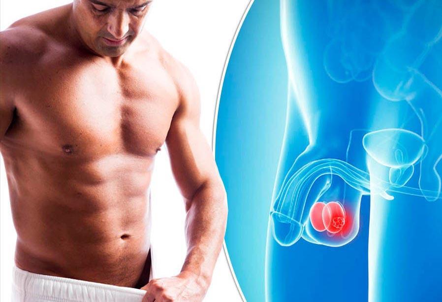 Опухание яичек у мужчин причины и лечение