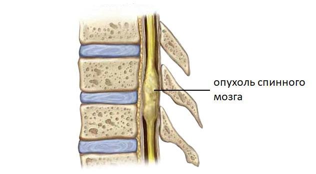 Опухоль спинного мозга лечение