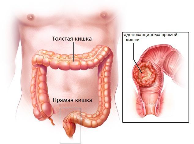 Аденокарцинома желудка кровит из анального отверстия помощь