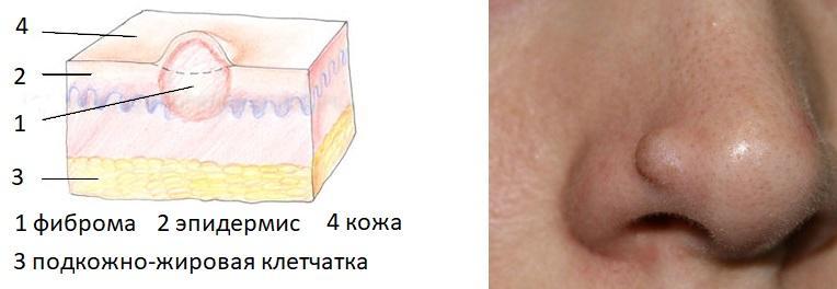 Фиброма на предплечье под кожей