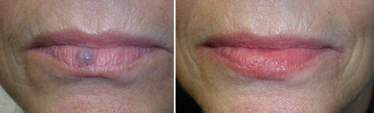 Гемангиома губы у взрослых лечение