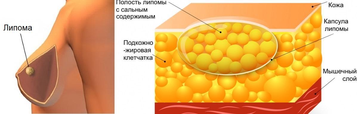 Липома молочной железы: что это такое и чем опасна