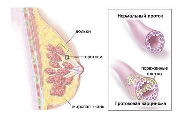 строение опухоли