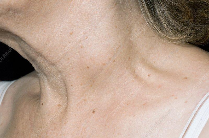 Рак лимфоузлов лечение