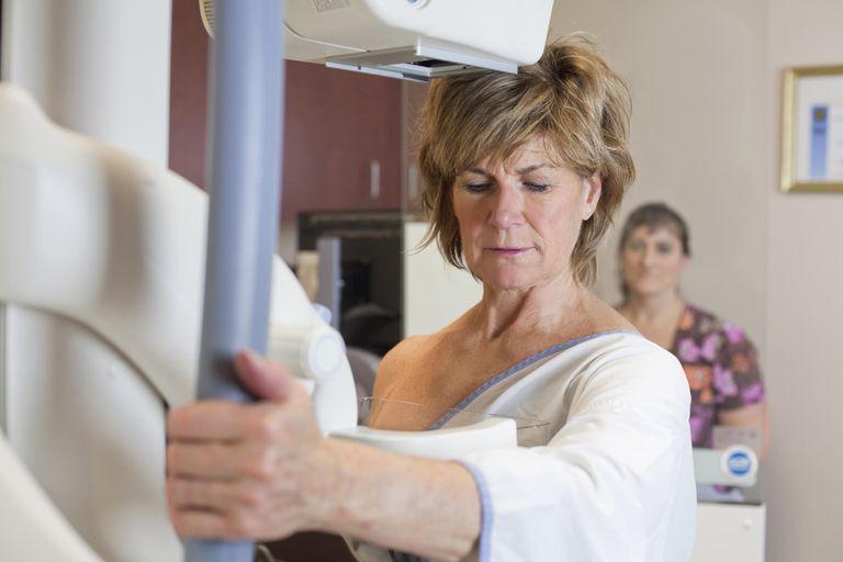 Инфильтрирующий протоковый рак молочной железы 1 степени