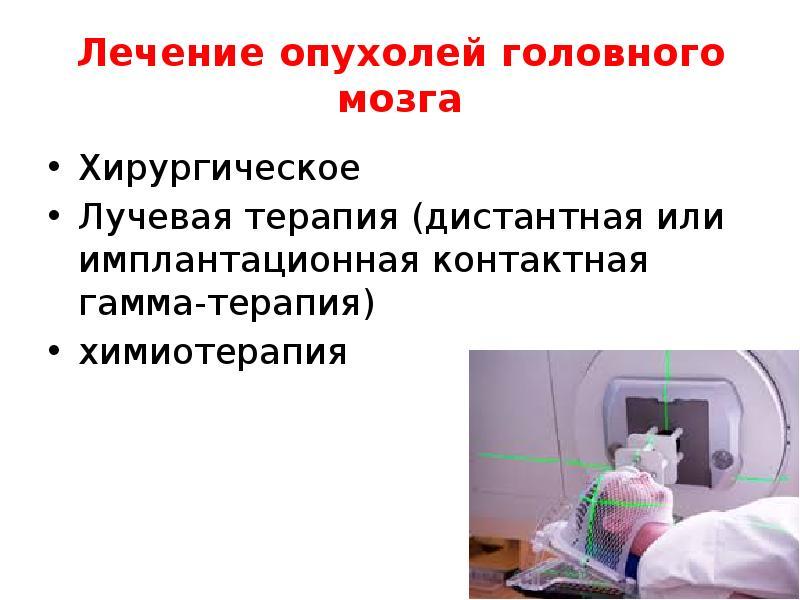 Лечение детских опухолей головного мозга