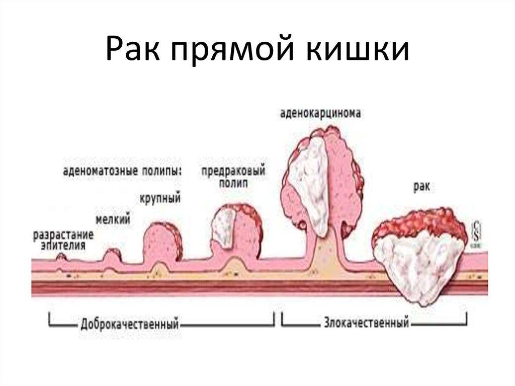 Способы лечения рака прямой кишки